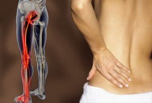 Treat Sciatic Pain using Osteopathy